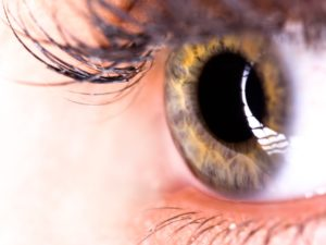 Diabetes can manifest itself in your eyes